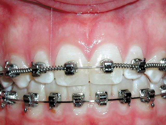 Smile Gallery - Dr. Michael Williamson