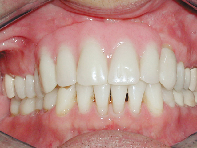 Smile Gallery - Dr. Michael Williamson