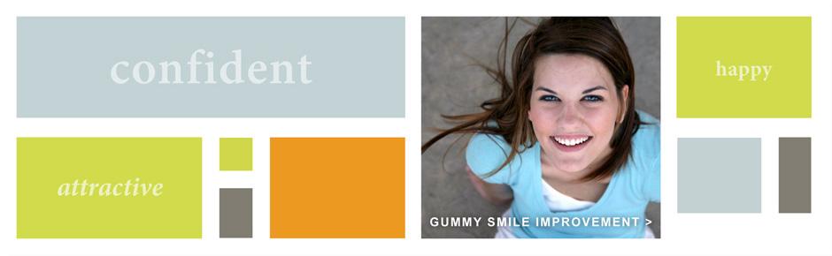 Gummy Smile Improvement